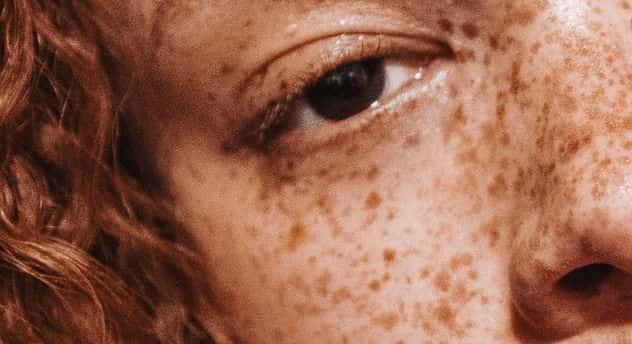 pigmentfläck i ögat